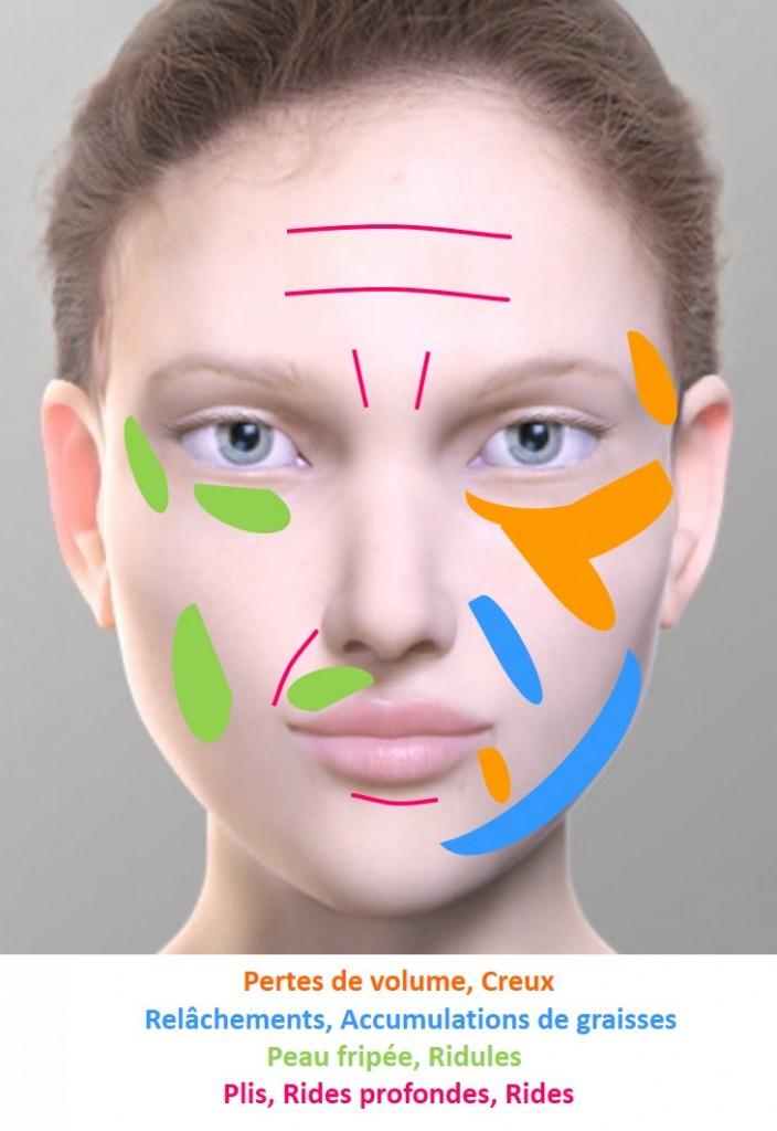 zones vieillissement visage