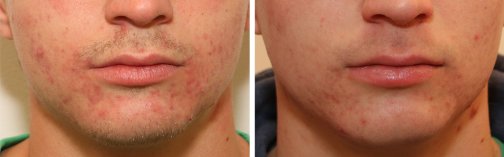 ACNE-FACE-AVAP-1024x320